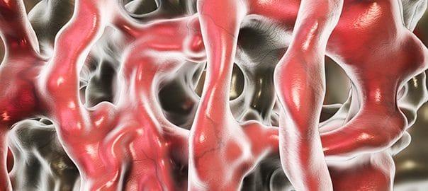 bone tissue 604x270 1