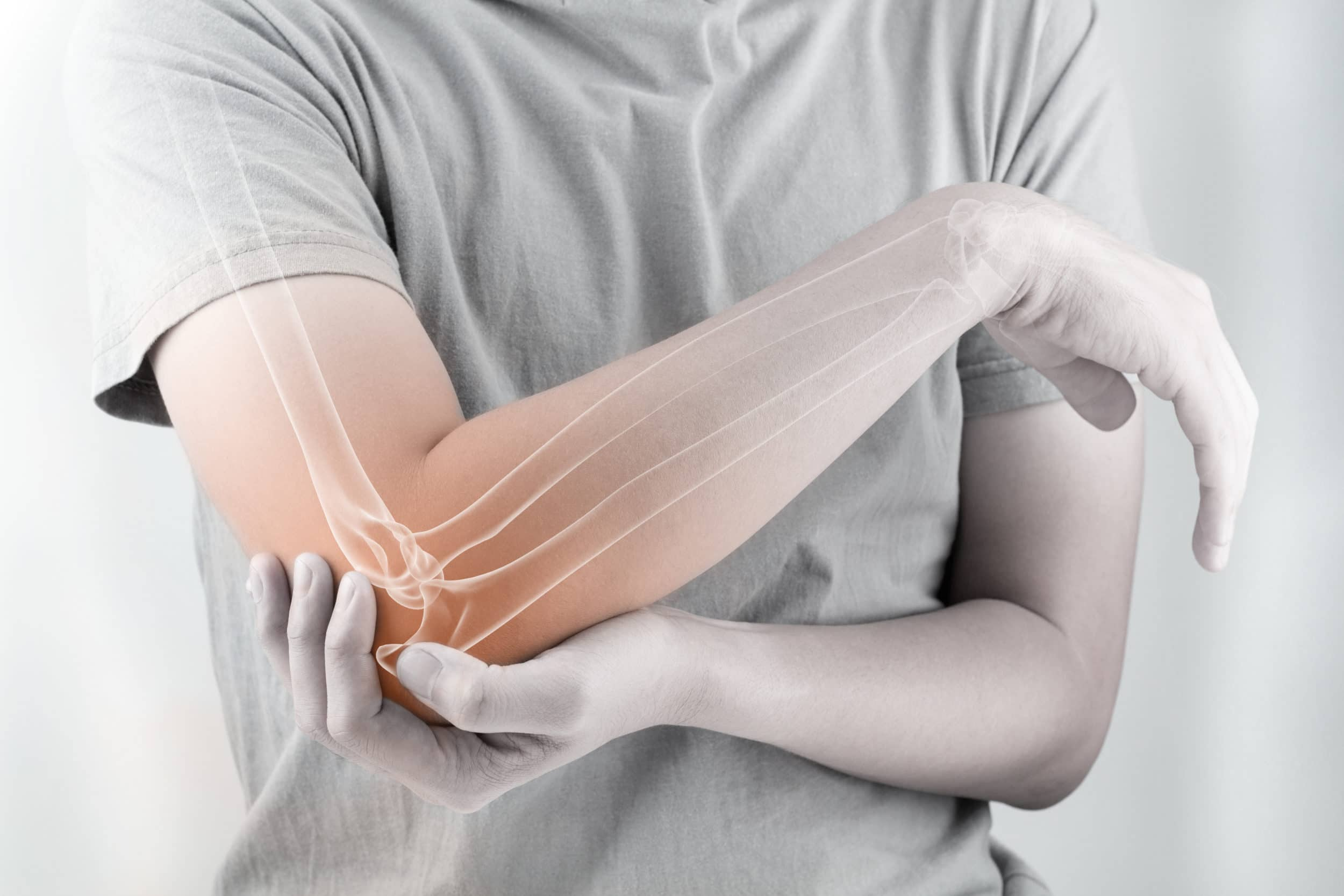 Holding elbow with bone pain