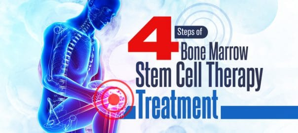 4 steps of bone marrow stem cell therapy treatment 5fefa87f42ee7