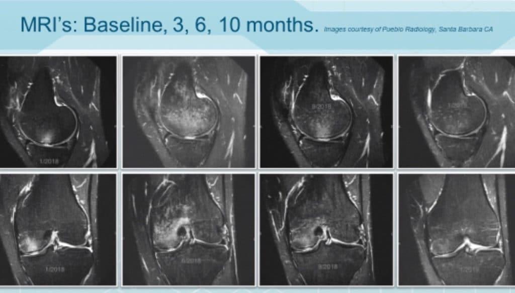 bone edema progression