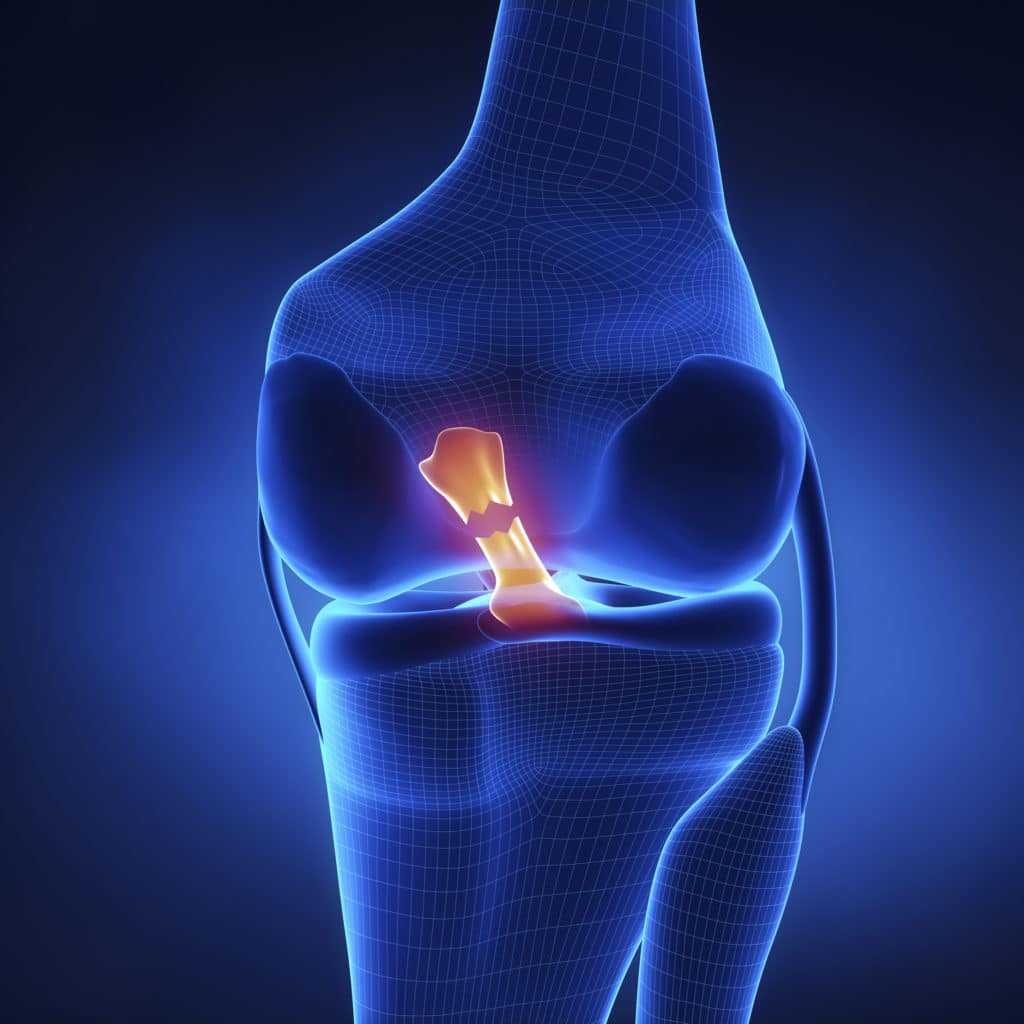 knee acl injuries linked to hormones 5fef7a91be1df