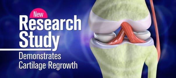 new research study demonstrates cartilage regrowth 5fefc1d5179fc