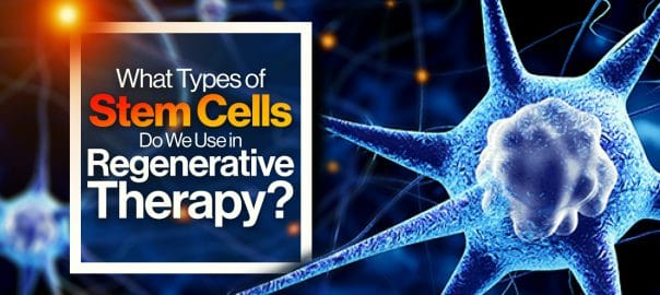 what types of stem cells do we use in regenerative medicine 5fefa1ca1c529
